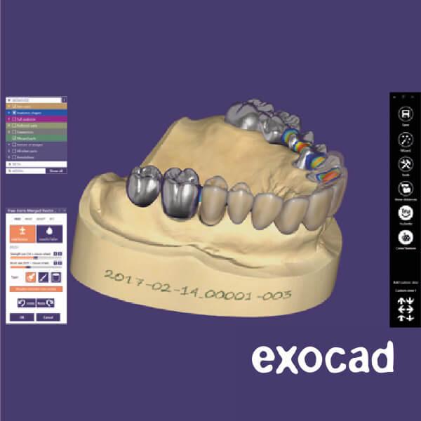 exocad(エグゾキャド)