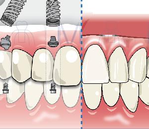 歯 の アンチエイジング