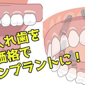 総入れ歯 低価格 all-on-4