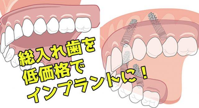 総入れ歯  All-on-4