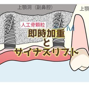 インプラント 骨がない 即時加重 サイナスリフト