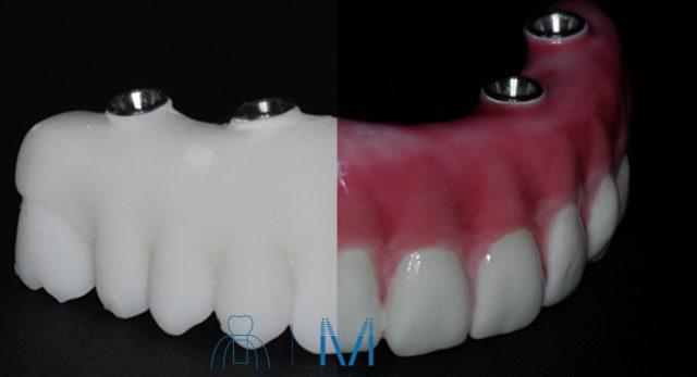All-on-4 の 仮歯 から 本歯 ( 上部構造 )が できるまで