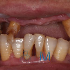 歯がボロボロの時の治療法