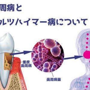 歯周病とアルツハイマー病