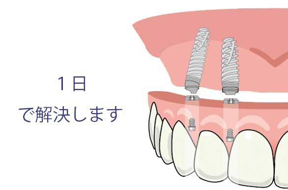 入れ歯が痛い 入れ歯が合わない 解決法