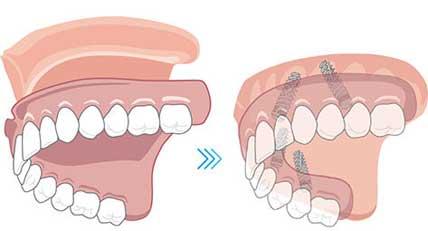 オールオン4 総義歯もインプラントブリッジに