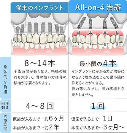 All-on-4 のメリット