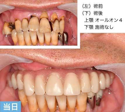 重度歯周病 オールオンフォー