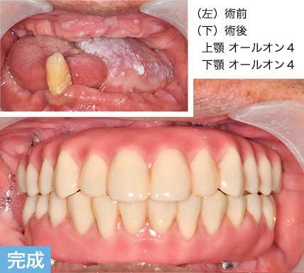 オールオン4 本歯