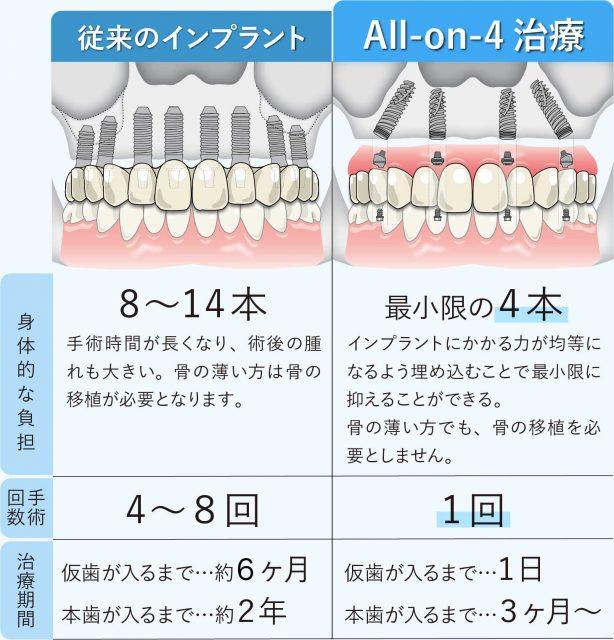 All-on-4 従来法との違い