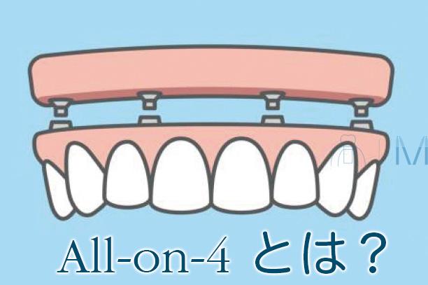 オールオン4とは