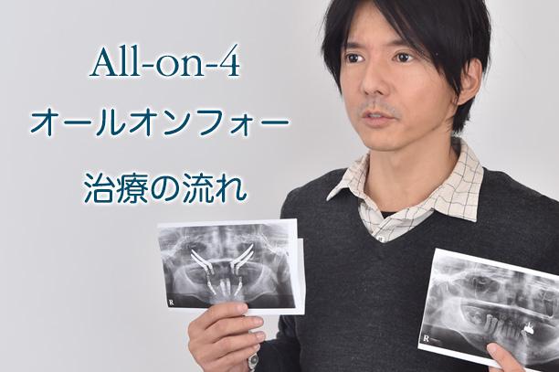 オールオン4  治療の流れ