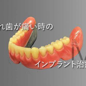 オールオン4 入れ歯